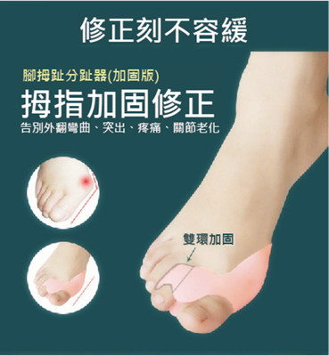 升級款拇指外翻矽膠雙孔保護套 (1.2折)